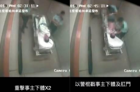 影片曝光!香港警察醫院私刑虐病患9分鐘 警棍狂戳下體