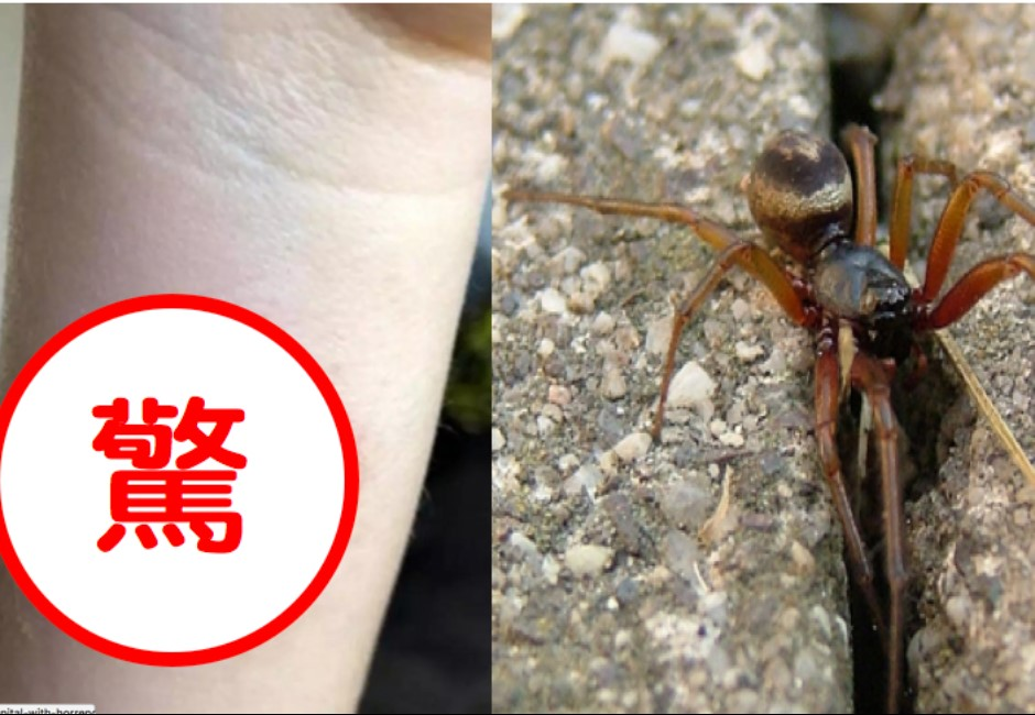 驚悚圖慎入/七歲女童遭蜘蛛狠咬!皮膚竟被吃掉一大片