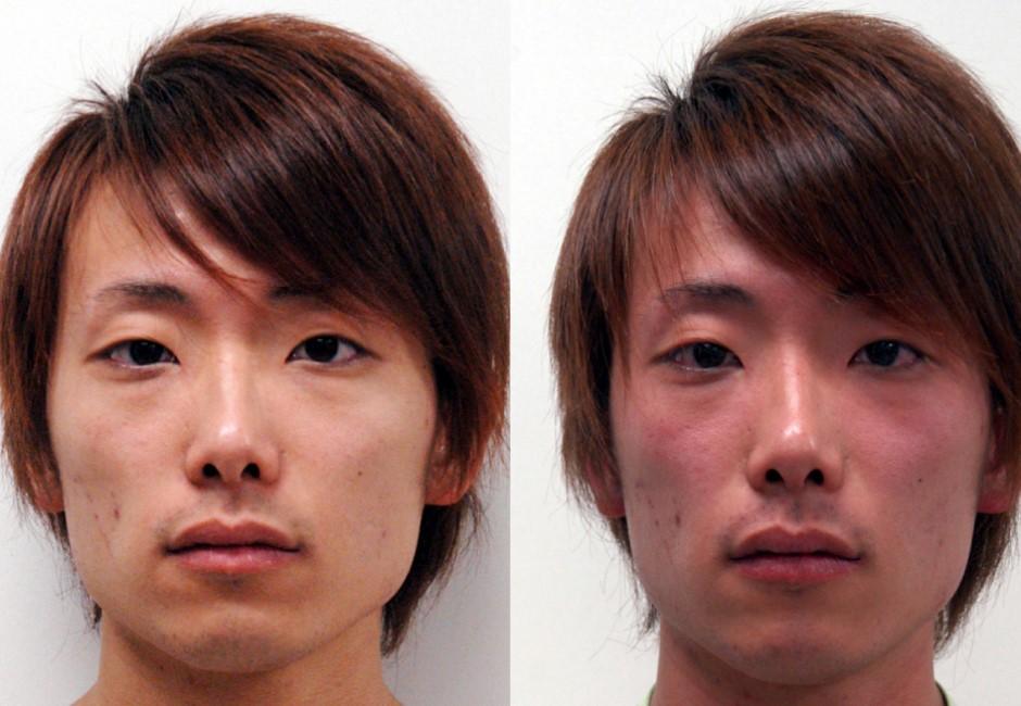 白人天生酒量好?近五成台灣人「一杯臉紅」 全因這基因世界第一