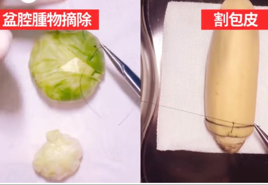 外科父親操刀幫「水果」動手術!背後原因就是為了兒子