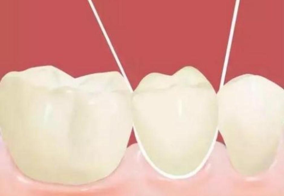 牙線清牙真有用?醫曝關鍵:多數人用錯反而引發牙周病!