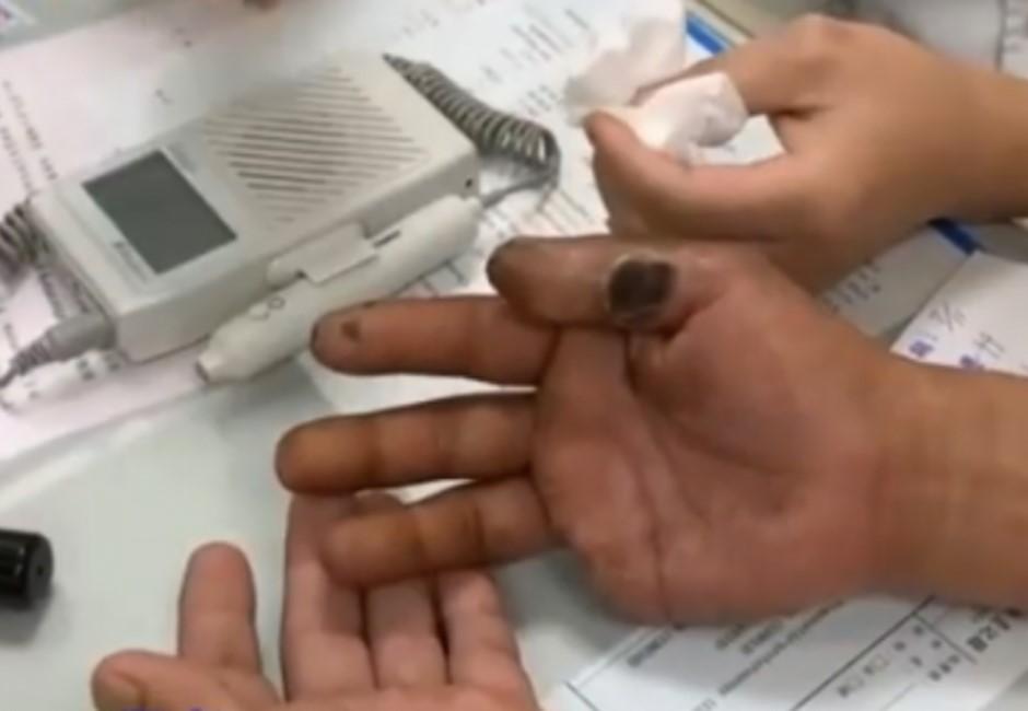 他手指發黑、凹大洞都因30年的壞習慣…連那邊都有「斷根」危機