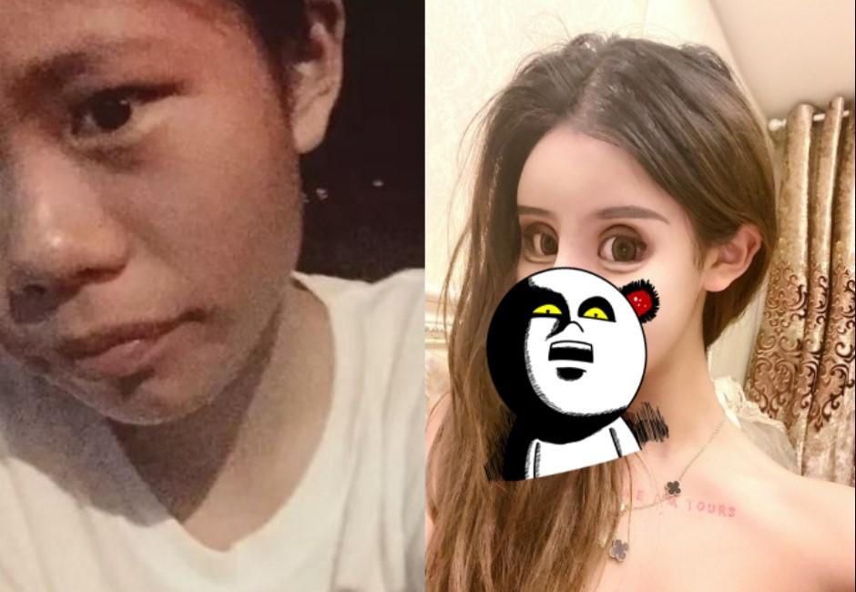 16歲正妹網紅「3年整形60次」…進化史曝光嚇傻網友