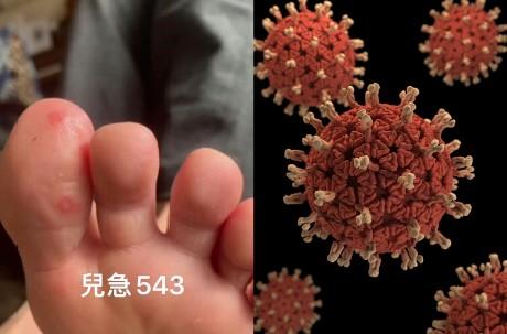 可分辨武漢肺炎無症狀感染者? 美國醫師臨床發現「看腳趾」